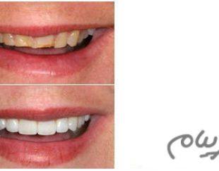 پنج روش در دندانپزشکی زیبایی برای اصلاح طرح لبخند