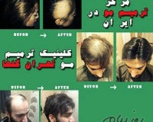 ترمیم مو گلهای تهران