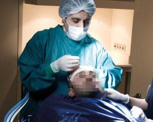 کاشت مو- پیوند مو-کاشت موی طبیعی