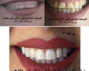 دندانپزشک ملاصدرا دکتر امیر مقدم لامینیت دندان،ایمپلنت دندان،اصلاح طرح لبخند،کاشت دندان