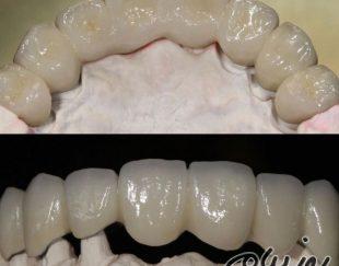 دندانپزشکی مروارید اصفهان،ارائه بهترین خدمات دندانپزشکی،ترمیم دندان،جرم گیری،درمان ریشه،جراحی و…